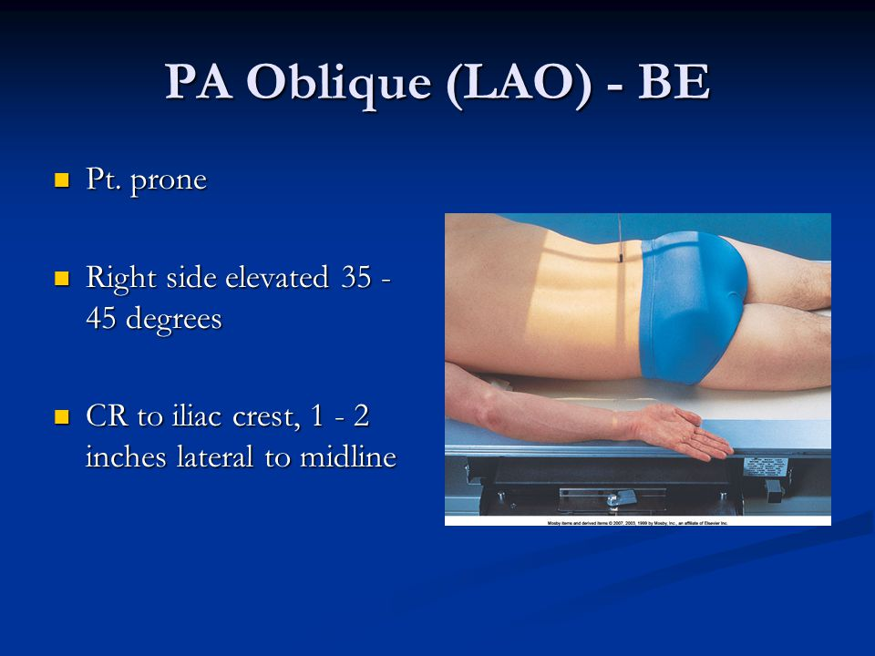 PA Oblique (LAO) - BE Pt. prone Pt. prone Right side elevated 35 - 45 degrees Right side elevated 35 - 45 degrees CR to iliac crest, 1 - 2 inches late