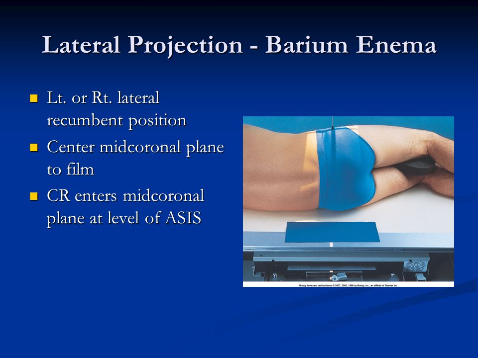Lateral Projection - Barium Enema Lt. or Rt. lateral recumbent position Lt. or Rt. lateral recumbent position Center midcoronal plane to film Center m
