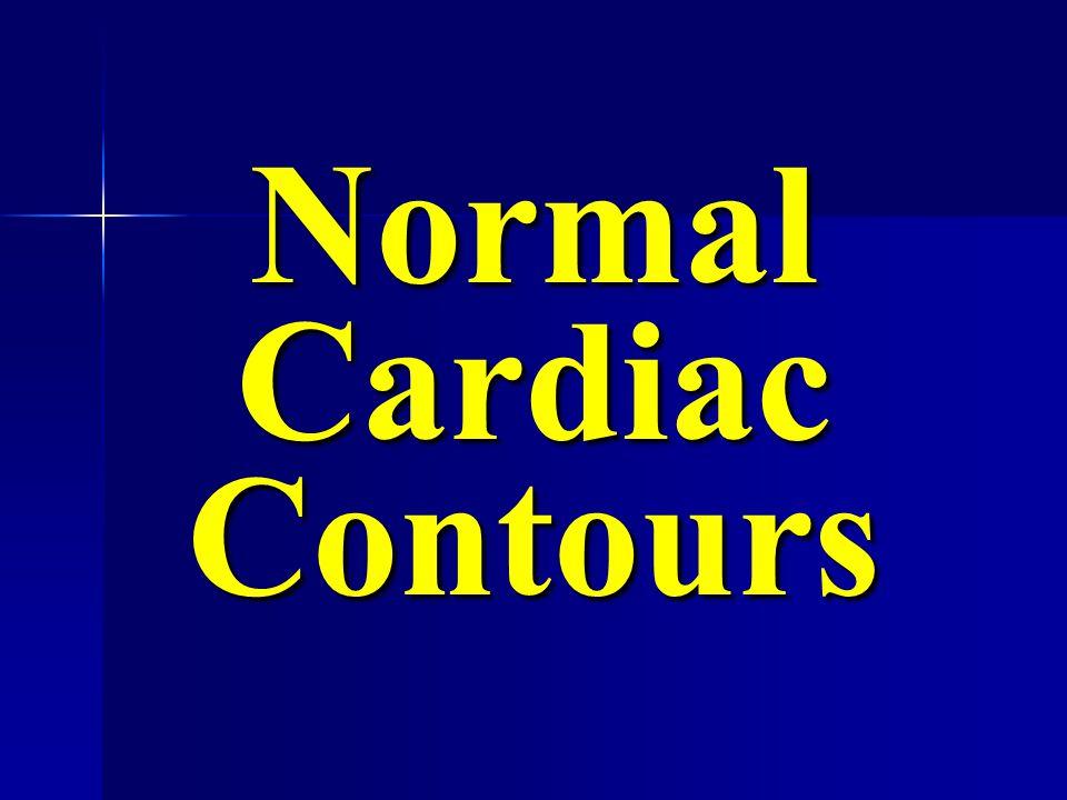 normal frontal view L MV AV Source Undetermined Gray's Anatomy, wordpresswordpress