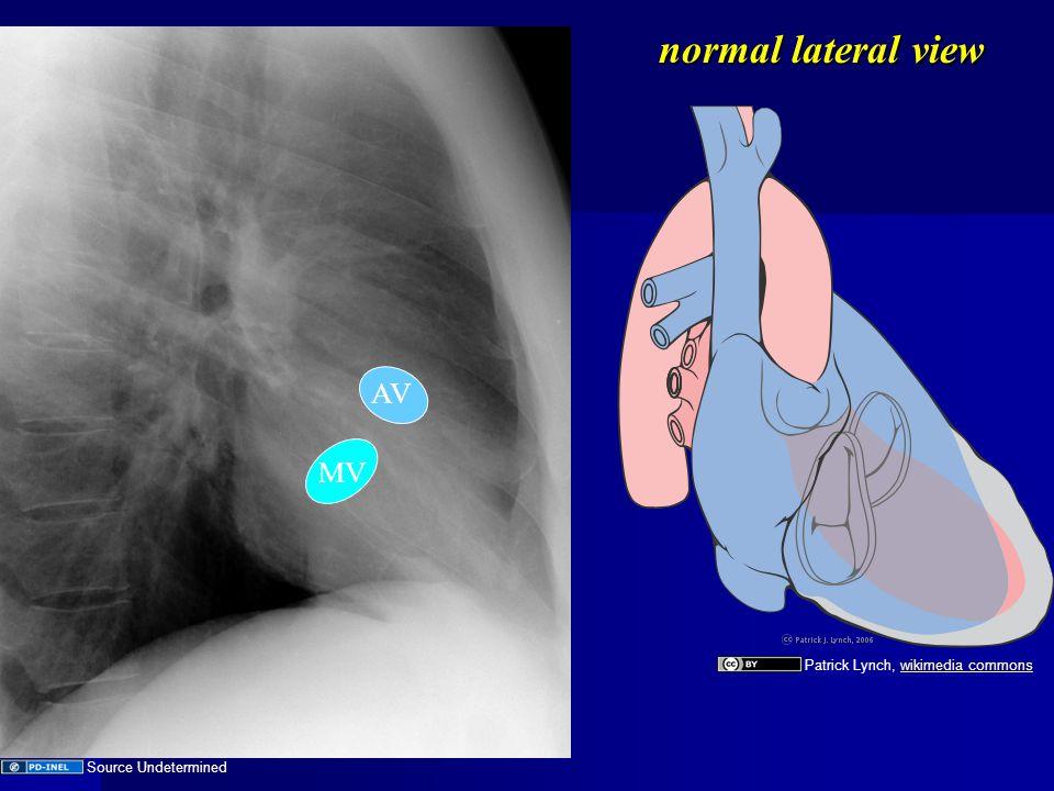 Abnormal Cardiac Contours