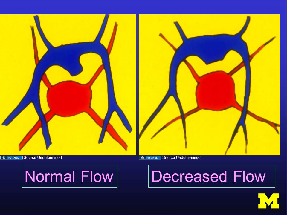 Normal FlowDecreased Flow Source Undetermined