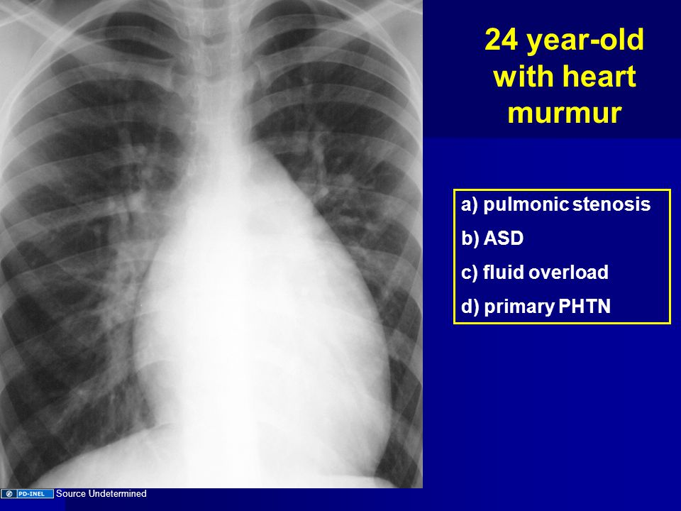 24 year-old with heart murmur a) pulmonic stenosis b) ASD c) fluid overload d) primary PHTN Source Undetermined