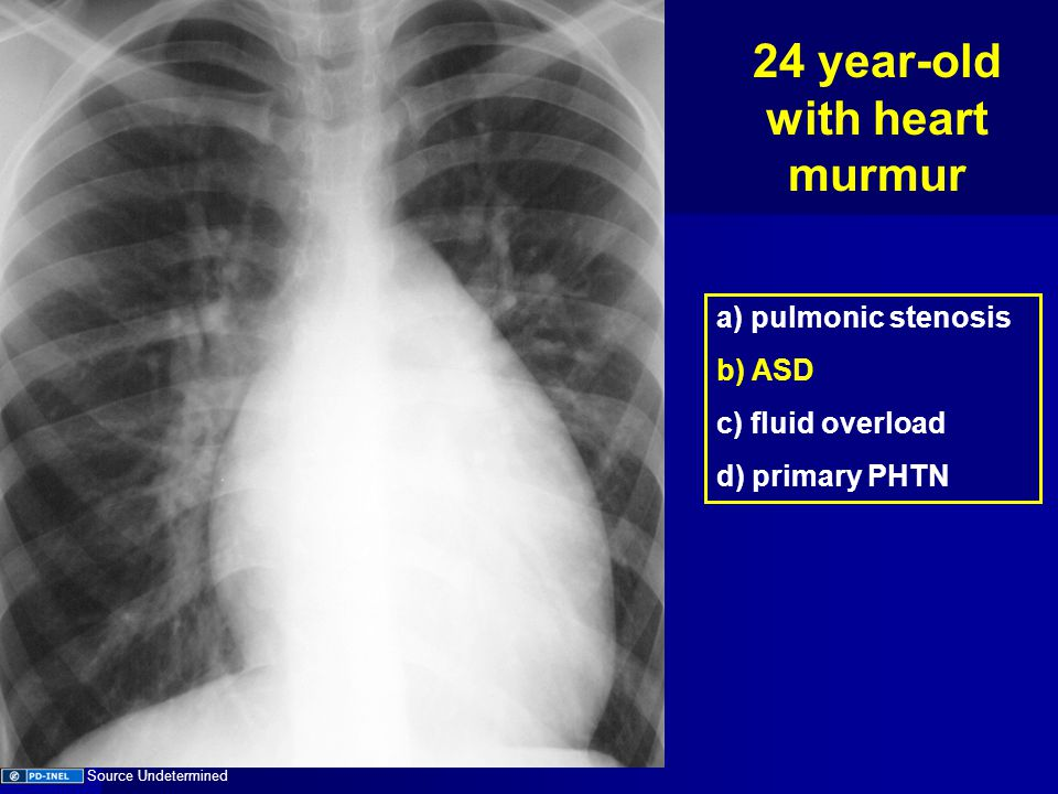 Objectives Understand available imaging modalities Understand available imaging modalities CXR Diagnostic approach CXR Diagnostic approach Unknowns Unknowns
