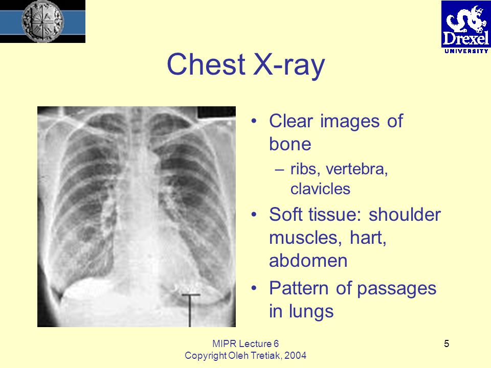 MIPR Lecture 6 Copyright Oleh Tretiak, 2004 5 Chest X-ray Clear images of bone –ribs, vertebra, clavicles Soft tissue: shoulder muscles, hart, abdomen Pattern of passages in lungs