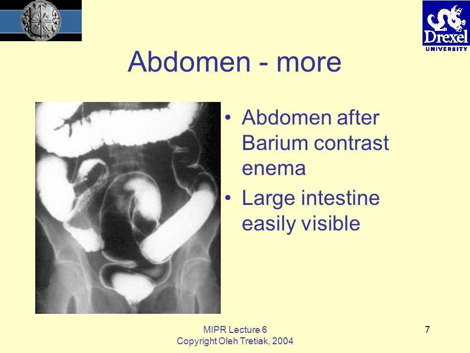 MIPR Lecture 6 Copyright Oleh Tretiak, 2004 7 Abdomen - more Abdomen after Barium contrast enema Large intestine easily visible