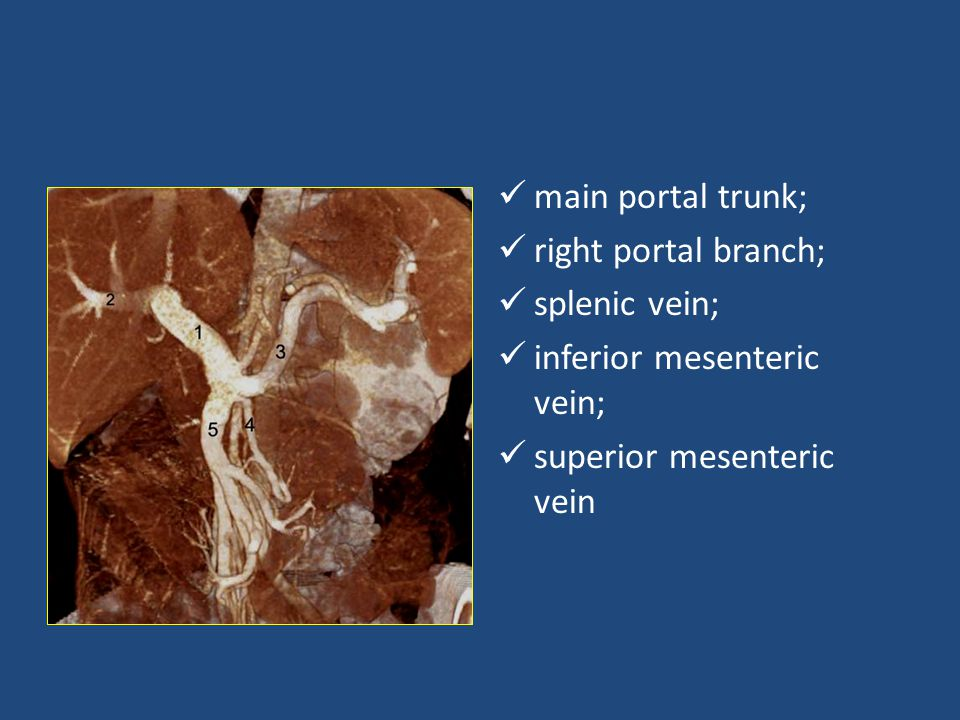 main portal trunk; right portal branch; splenic vein; inferior mesenteric vein; superior mesenteric vein