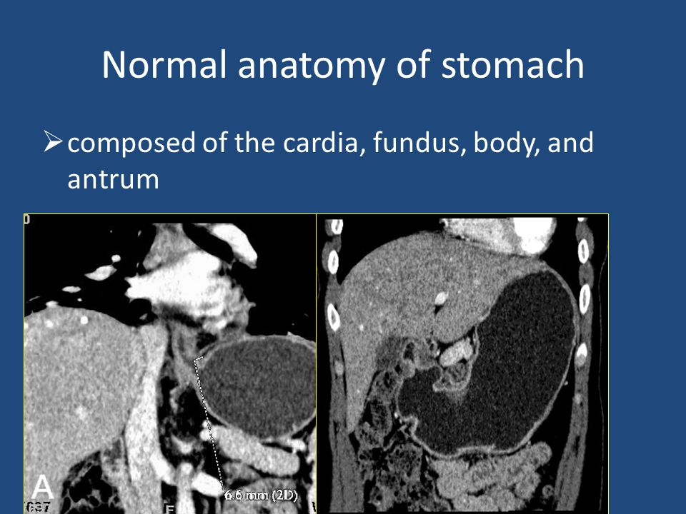 Normal anatomy of stomach  composed of the cardia, fundus, body, and antrum