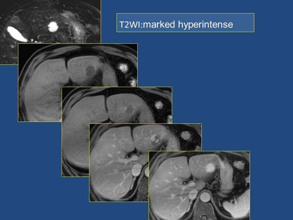 T2WI: marked hyperintense