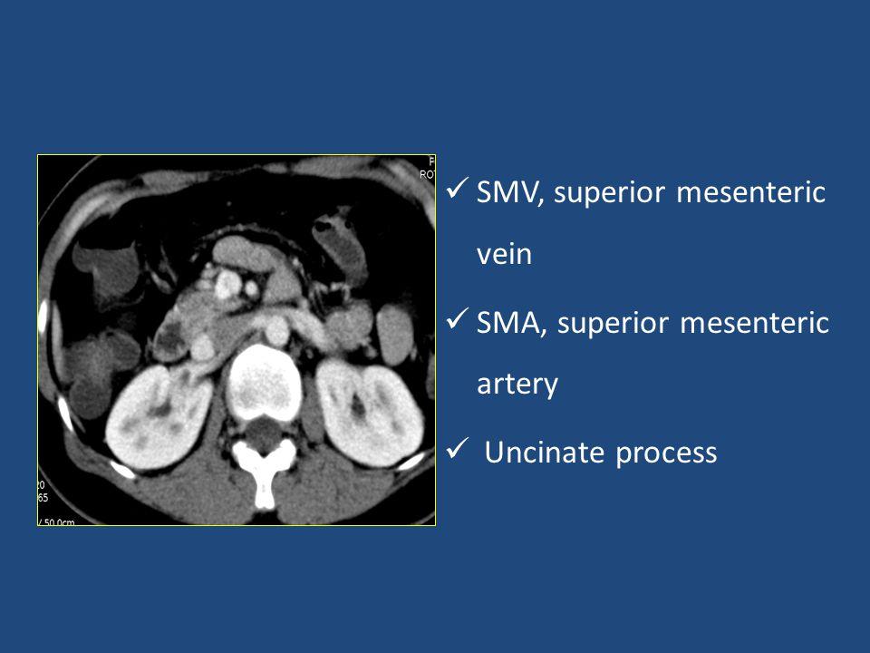 SMV, superior mesenteric vein SMA, superior mesenteric artery Uncinate process
