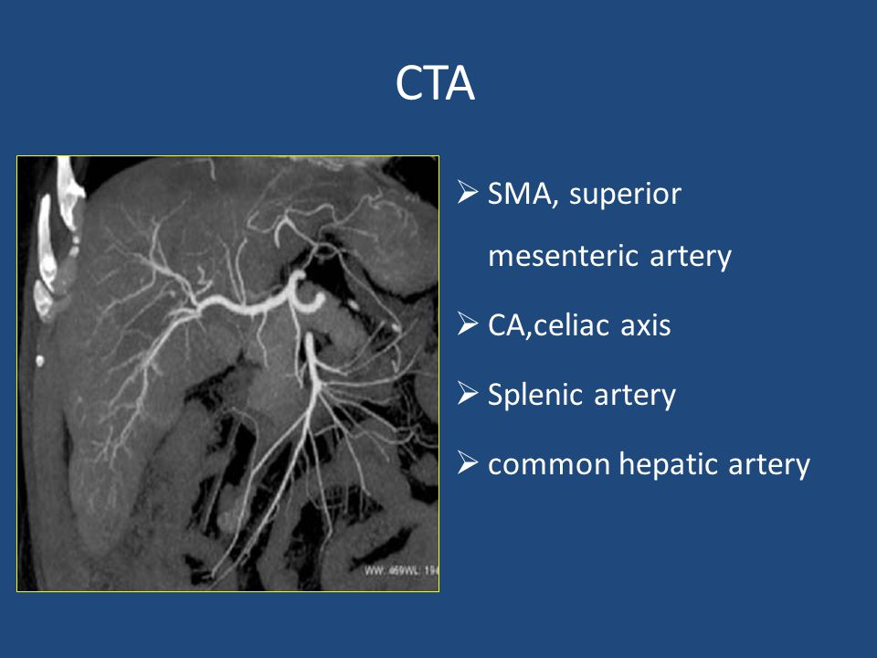 CTA  SMA, superior mesenteric artery  CA,celiac axis  Splenic artery  common hepatic artery