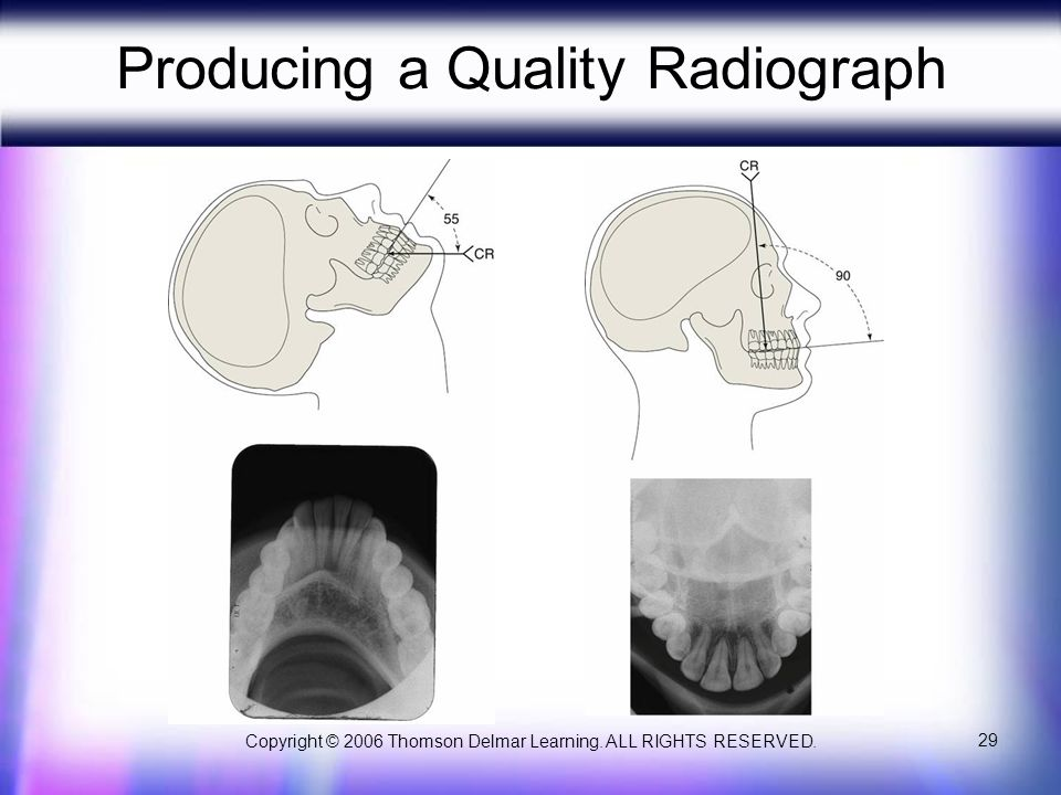 Copyright © 2006 Thomson Delmar Learning. ALL RIGHTS RESERVED. 29 Producing a Quality Radiograph