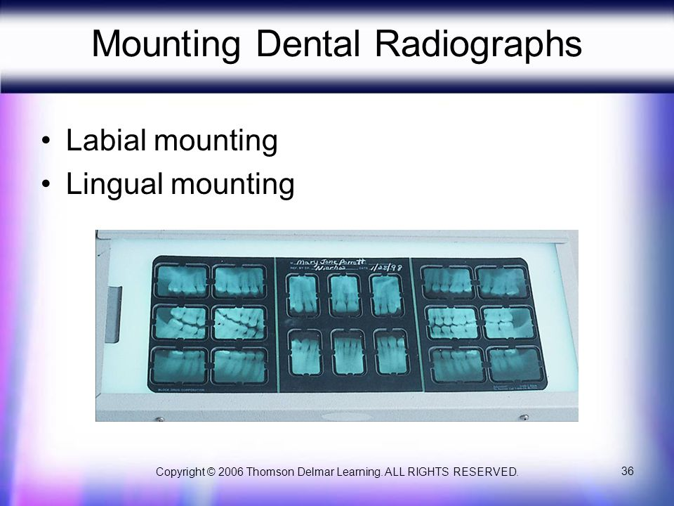 Copyright © 2006 Thomson Delmar Learning. ALL RIGHTS RESERVED. 36 Mounting Dental Radiographs Labial mounting Lingual mounting