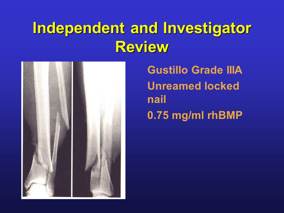 Independent and Investigator Review Gustillo Grade IIIA Unreamed locked nail 0.75 mg/ml rhBMP