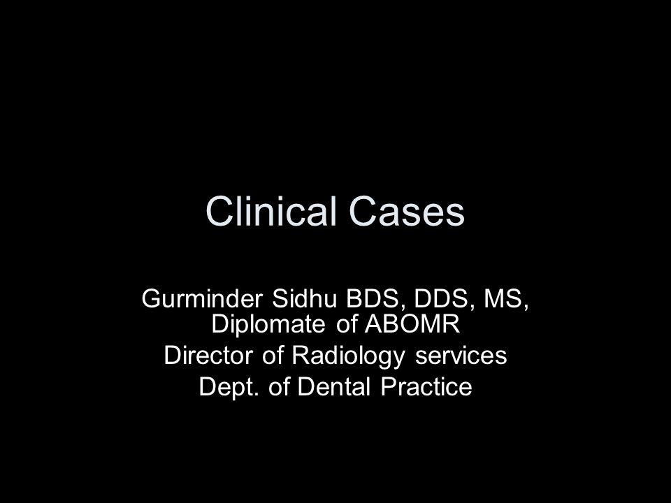 CASE 1 30 year old female presented for regular dental check up.