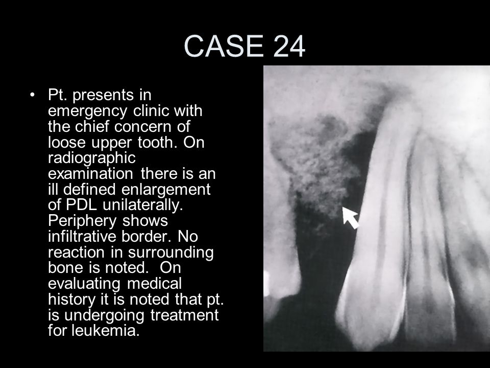 CASE 24 Pt. presents in emergency clinic with the chief concern of loose upper tooth. On radiographic examination there is an ill defined enlargement
