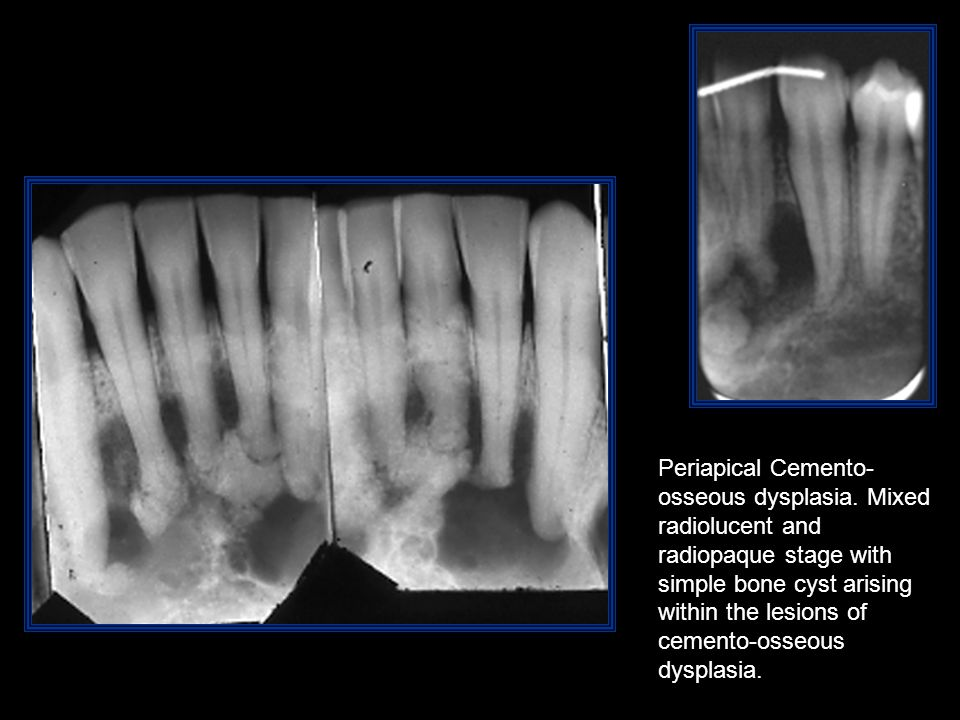 Periapical Cemento- osseous dysplasia. Mixed radiolucent and radiopaque stage with simple bone cyst arising within the lesions of cemento-osseous dysp
