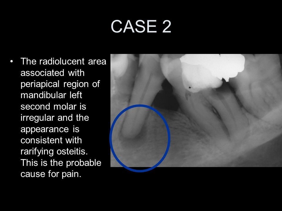 CASE 2 The radiolucent area associated with periapical region of mandibular left second molar is irregular and the appearance is consistent with rarif