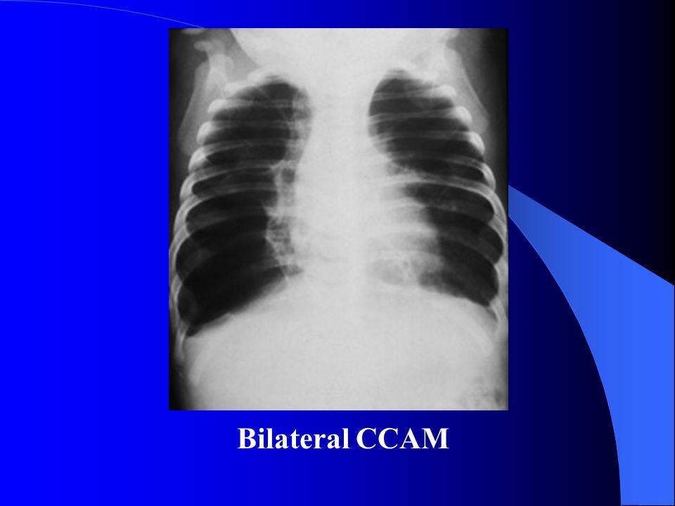 Bilateral CCAM