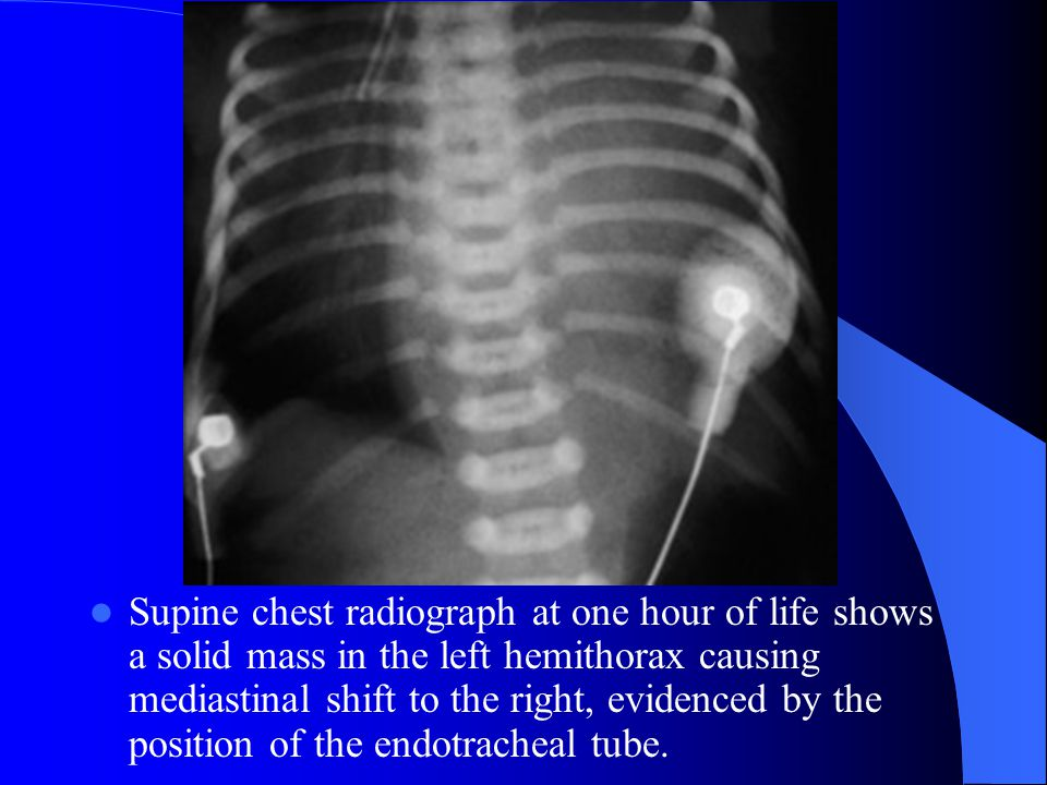 Supine chest radiograph at one hour of life shows a solid mass in the left hemithorax causing mediastinal shift to the right, evidenced by the position of the endotracheal tube.