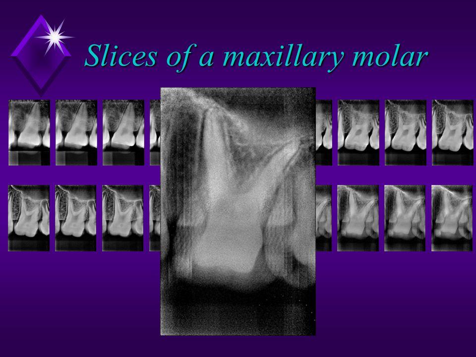 Slices of a maxillary molar