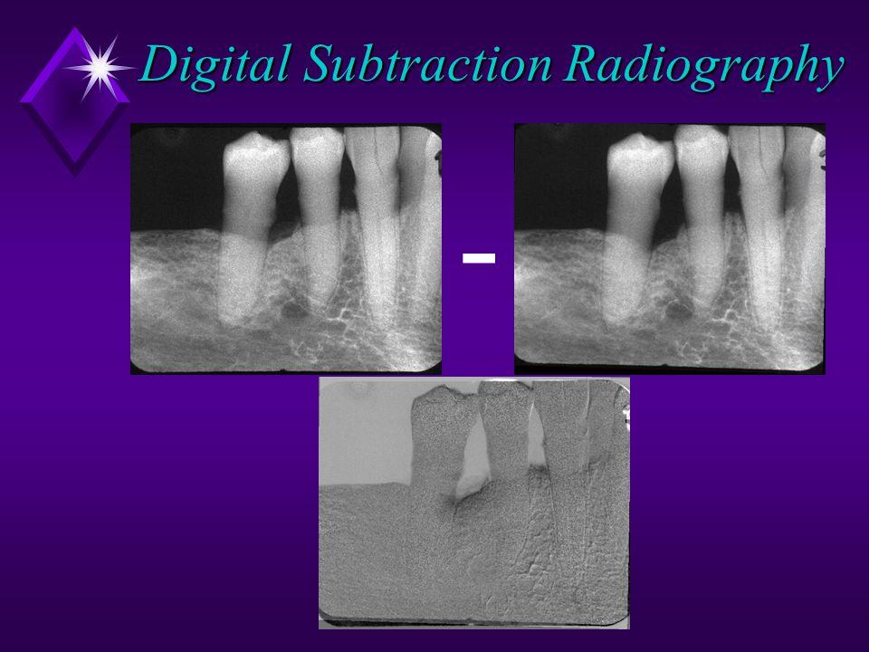 Digital Subtraction Radiography -