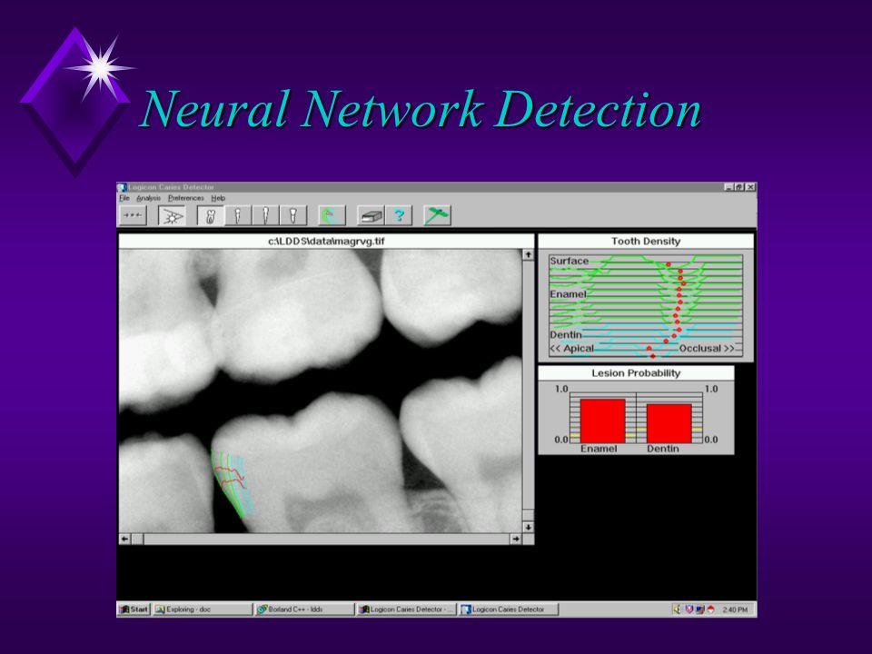 Neural Network Detection