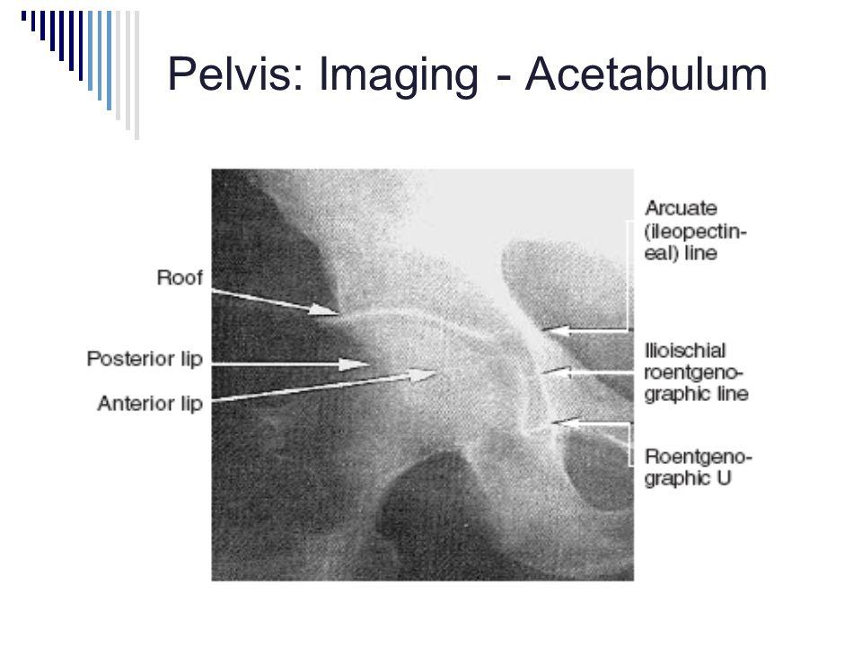 Pelvis: Imaging - Acetabulum
