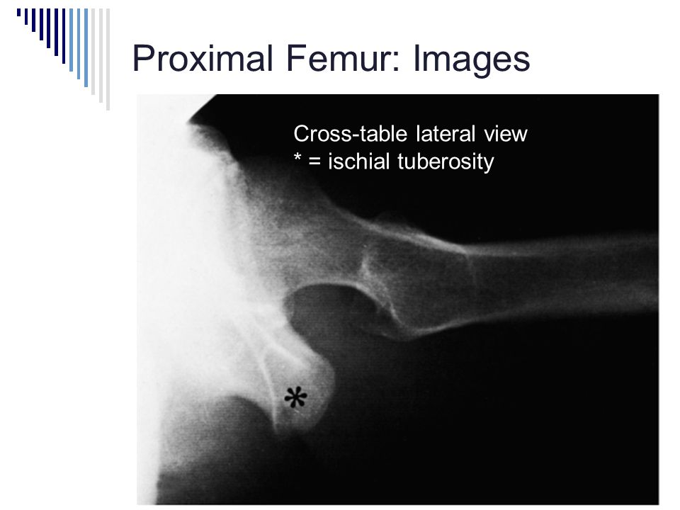 Proximal Femur: Images Cross-table lateral view * = ischial tuberosity