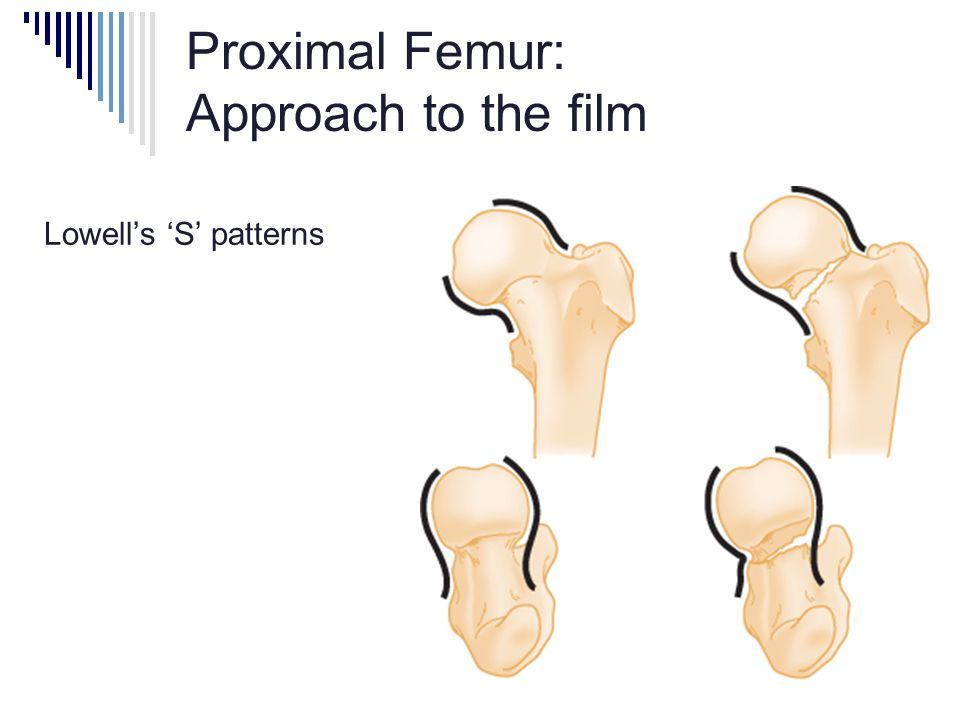 Proximal Femur: Approach to the film Lowell's 'S' patterns