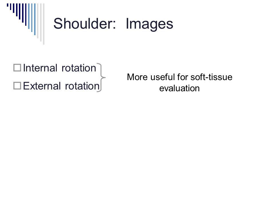 Shoulder: Images  Internal rotation  External rotation More useful for soft-tissue evaluation