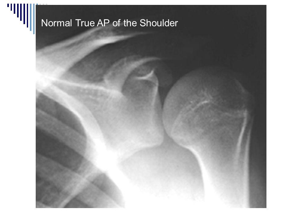 Normal True AP of the Shoulder