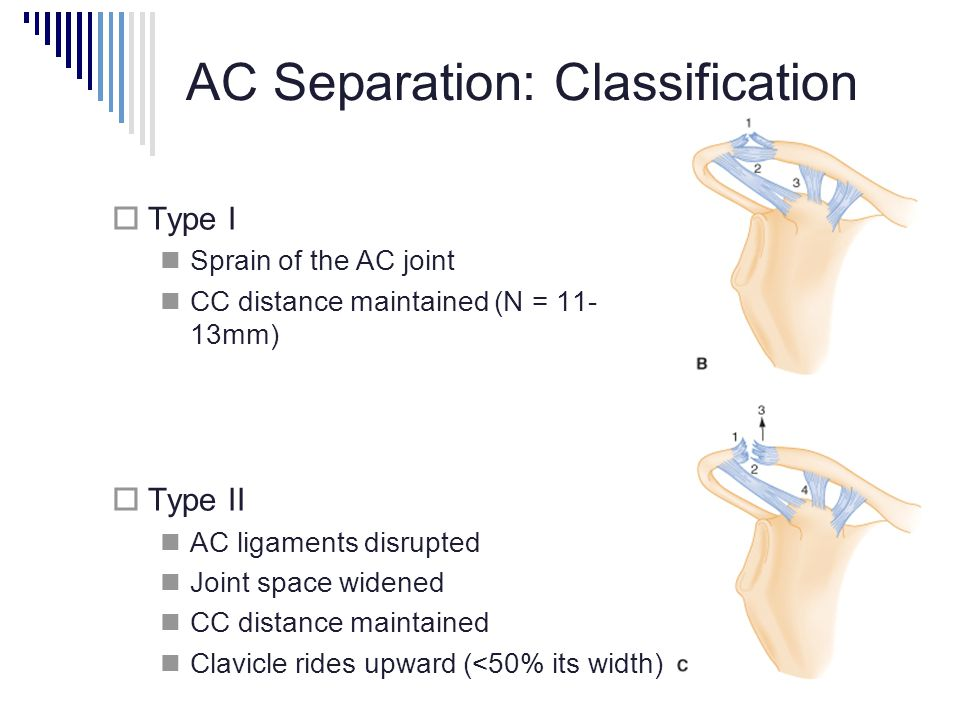 AC Separation: Classification  Type I Sprain of the AC joint CC distance maintained (N = 11- 13mm)  Type II AC ligaments disrupted Joint space widened CC distance maintained Clavicle rides upward (<50% its width)