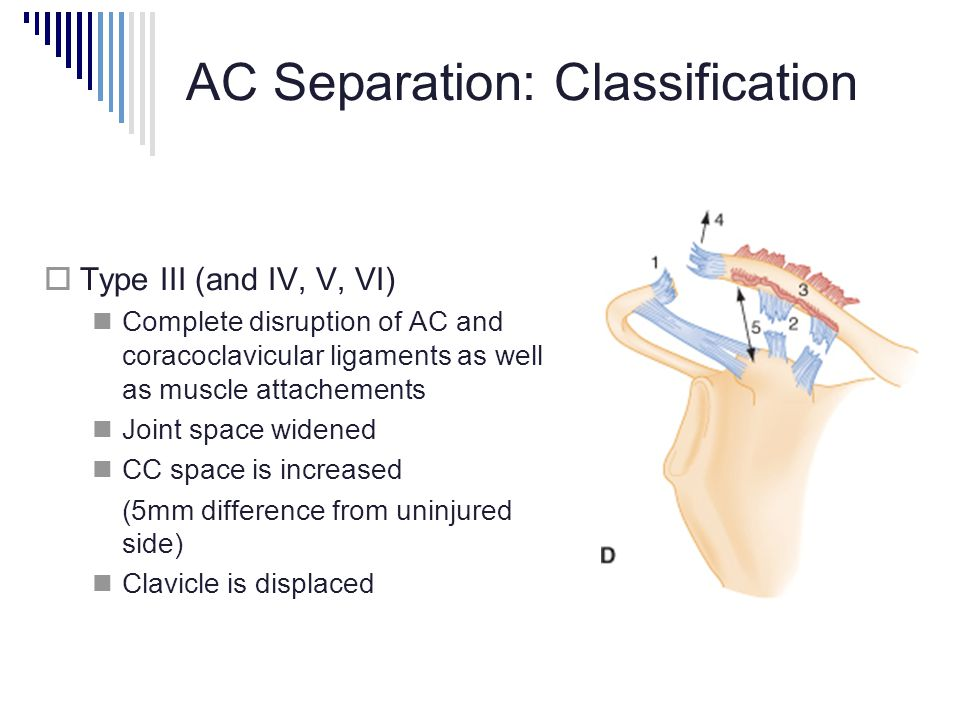AC Separation: Classification  Type III (and IV, V, VI) Complete disruption of AC and coracoclavicular ligaments as well as muscle attachements Joint space widened CC space is increased (5mm difference from uninjured side) Clavicle is displaced