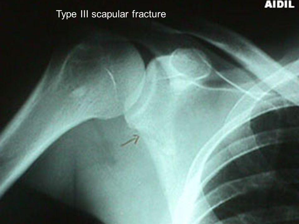 Type III scapular fracture
