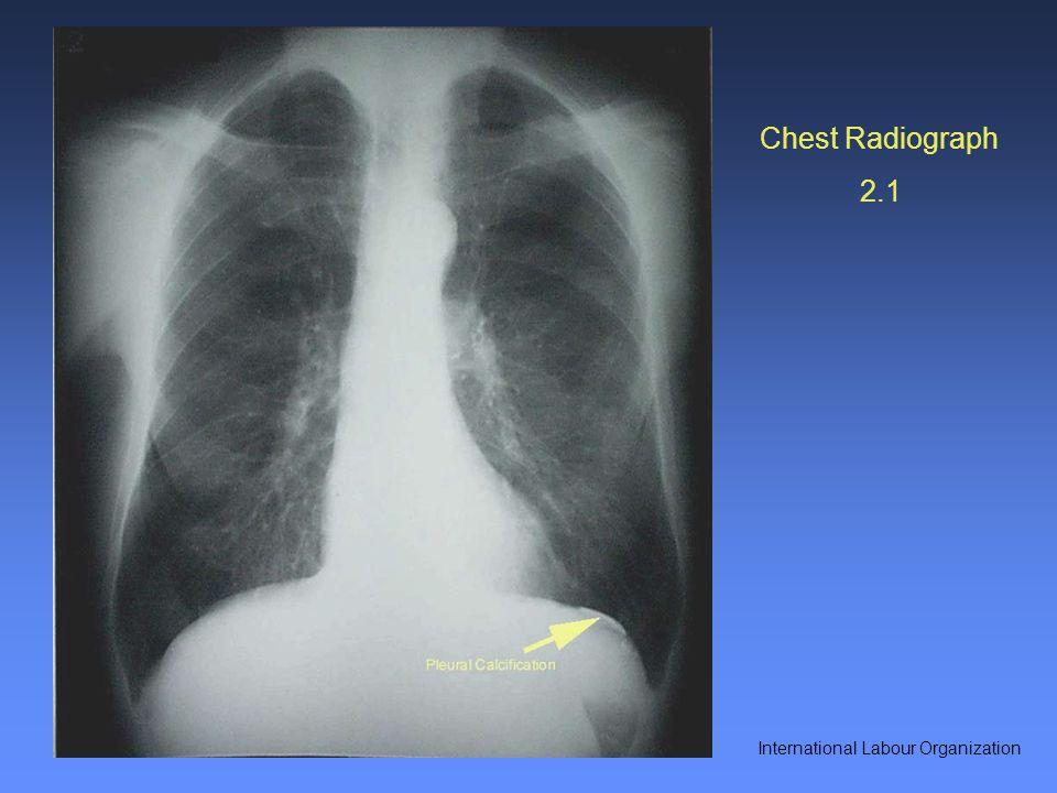Chest Radiograph 2.1 International Labour Organization