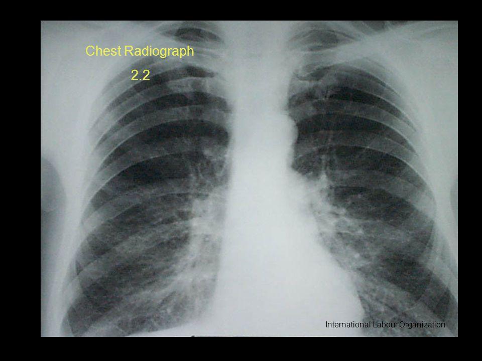 Chest Radiograph 2.2 International Labour Organization