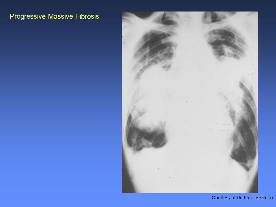 Progressive Massive Fibrosis Courtesy of Dr. Francis Green