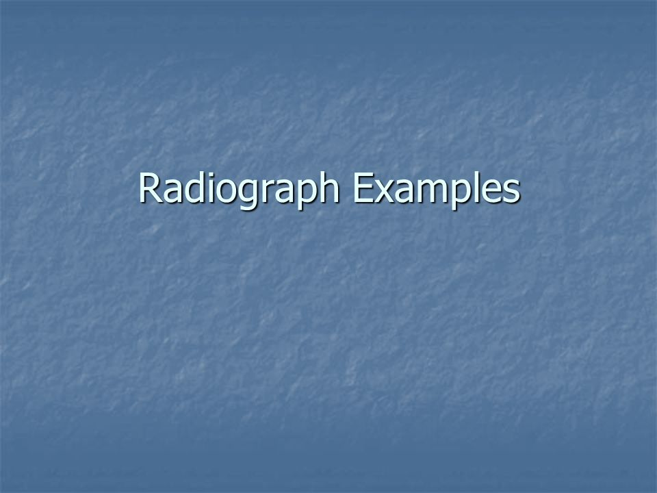 Radiograph Examples
