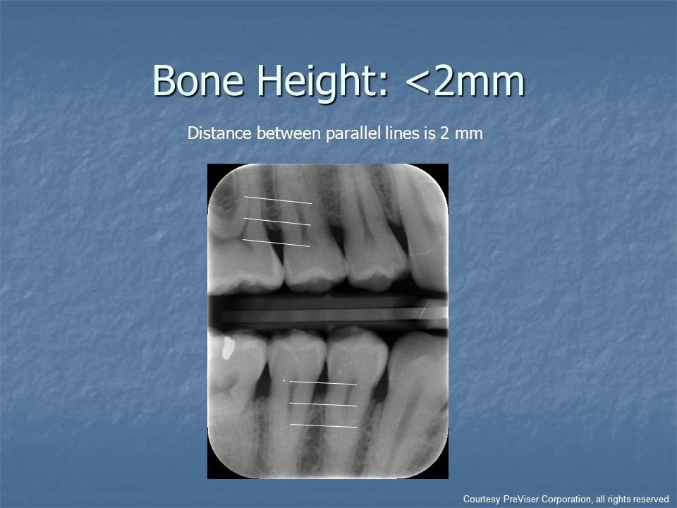 Bone Height: <2mm Distance between parallel lines is 2 mm Courtesy PreViser Corporation, all rights reserved