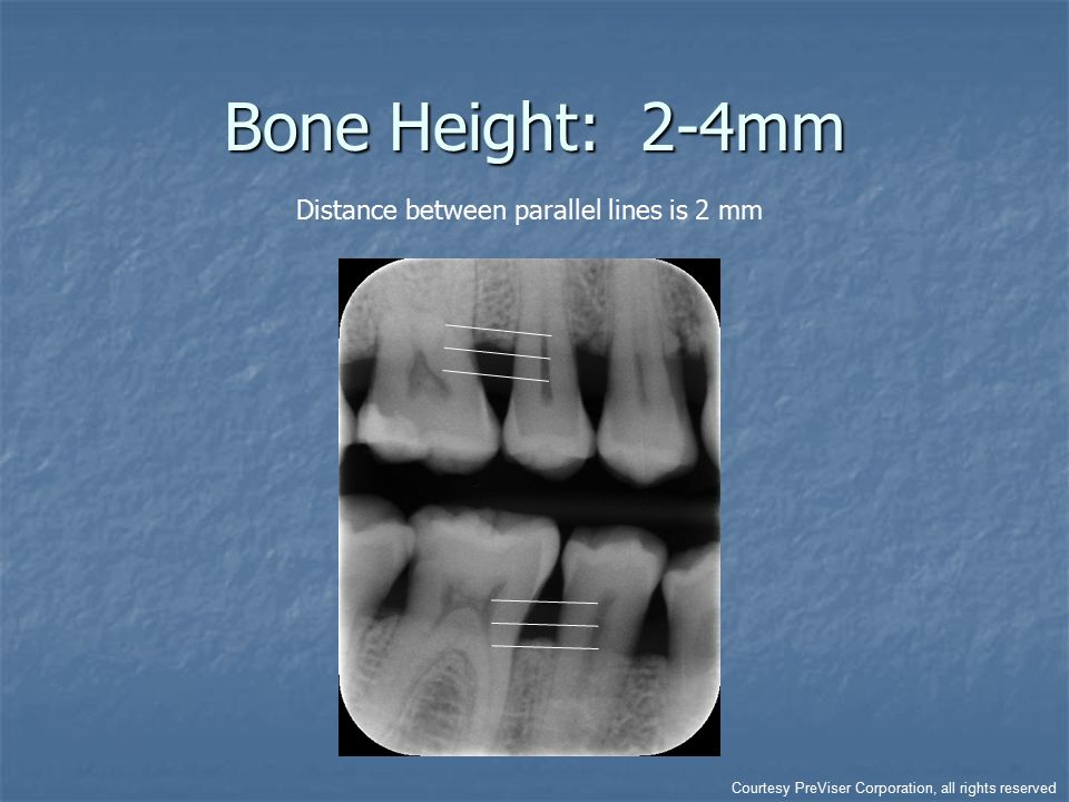 Bone Height: 2-4mm Distance between parallel lines is 2 mm Courtesy PreViser Corporation, all rights reserved