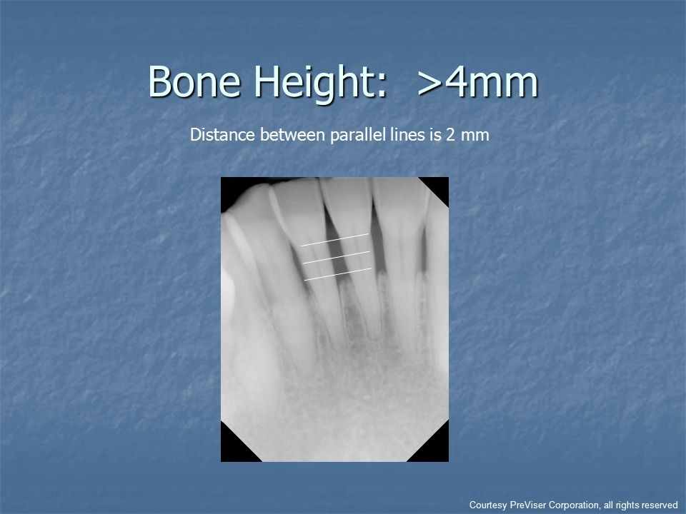 Bone Height: >4mm Distance between parallel lines is 2 mm Courtesy PreViser Corporation, all rights reserved