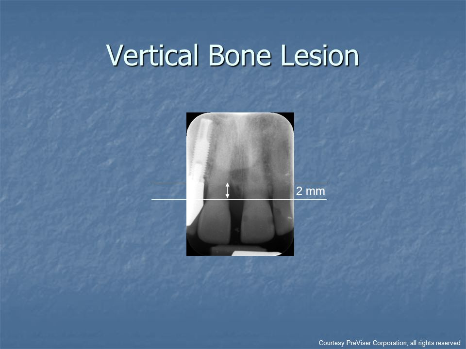 Vertical Bone Lesion 2 mm Courtesy PreViser Corporation, all rights reserved
