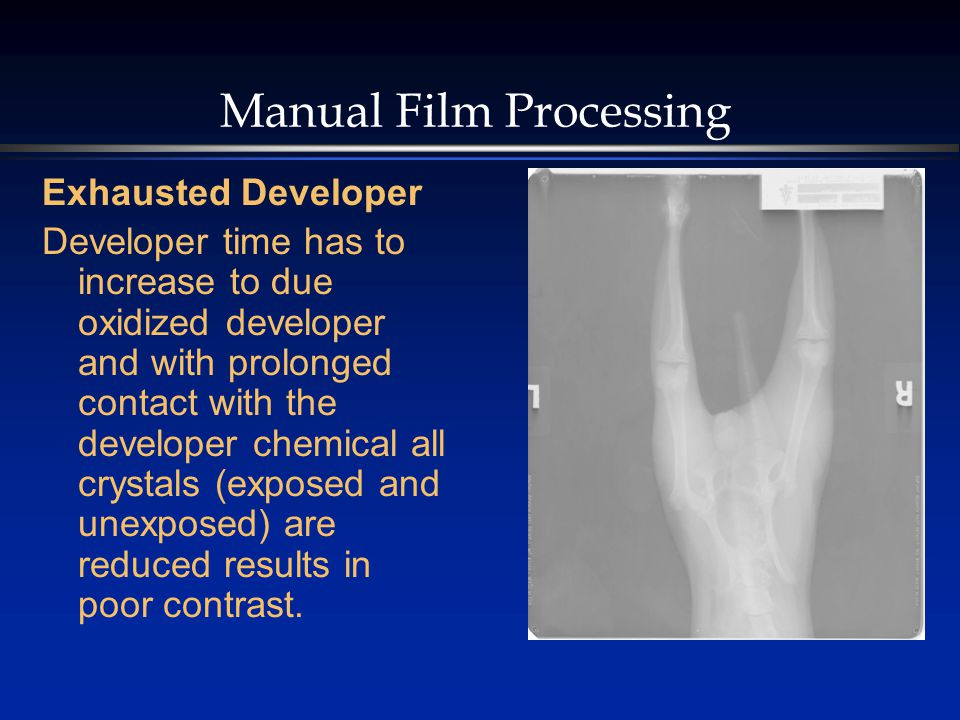 Manual Film Processing Exhausted Developer Developer time has to increase to due oxidized developer and with prolonged contact with the developer chemical all crystals (exposed and unexposed) are reduced results in poor contrast.