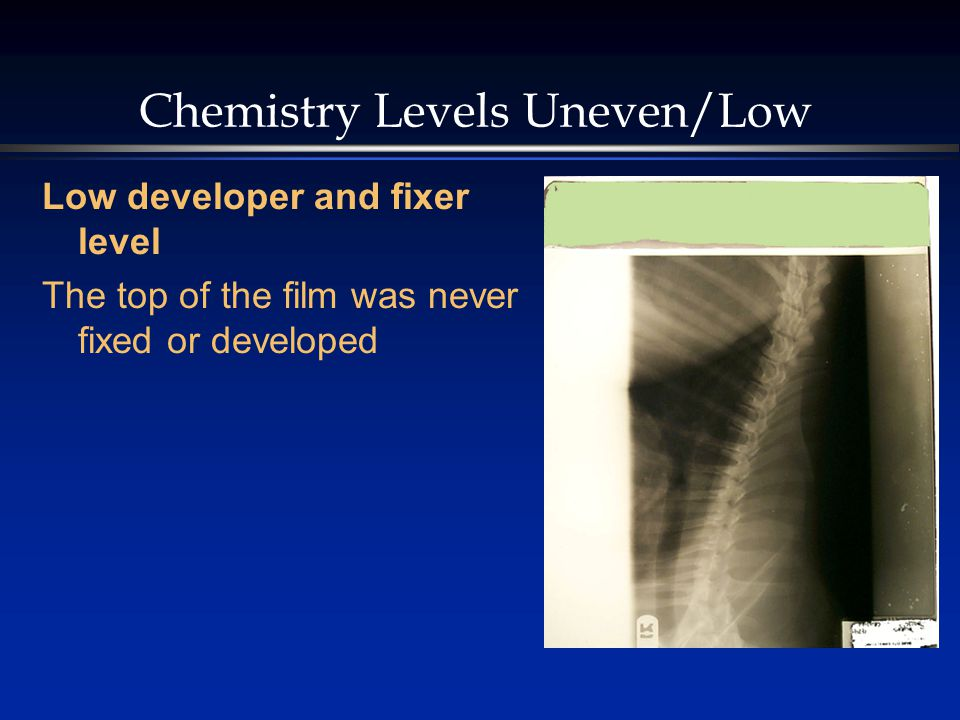 Chemistry Levels Uneven/Low Low developer and fixer level The top of the film was never fixed or developed