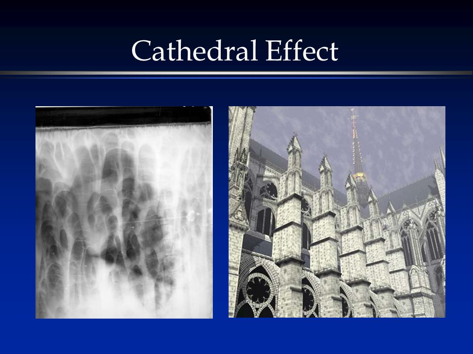 Cathedral Effect