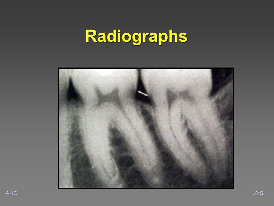 AHCJYS Radiographs