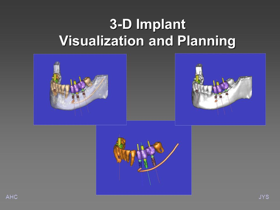 AHCJYS 3-D Implant Visualization and Planning