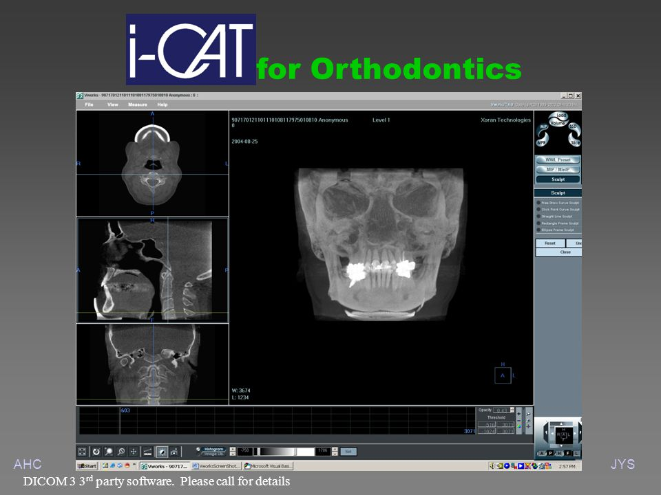 AHCJYS for Orthodontics DICOM 3 3 rd party software. Please call for details