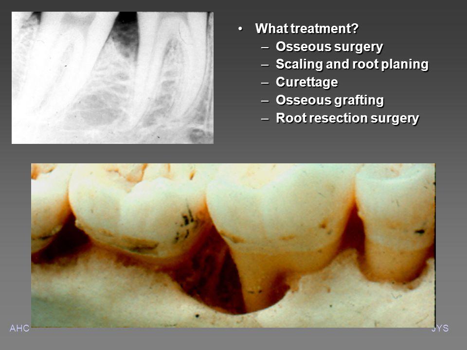 AHCJYS What treatment What treatment.