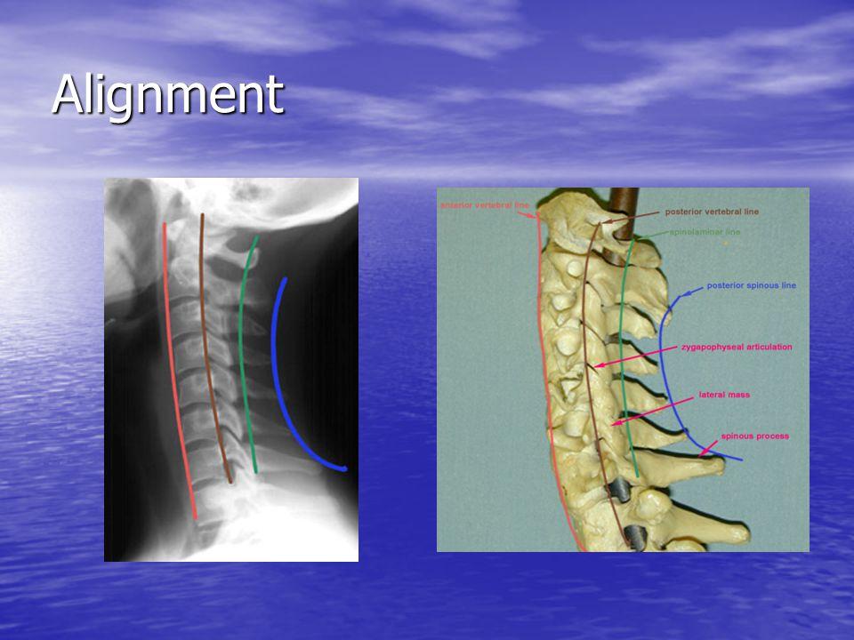 Bony Landmarks Trace the unbroken outline of each vertebrae (including Odontoid on C2).